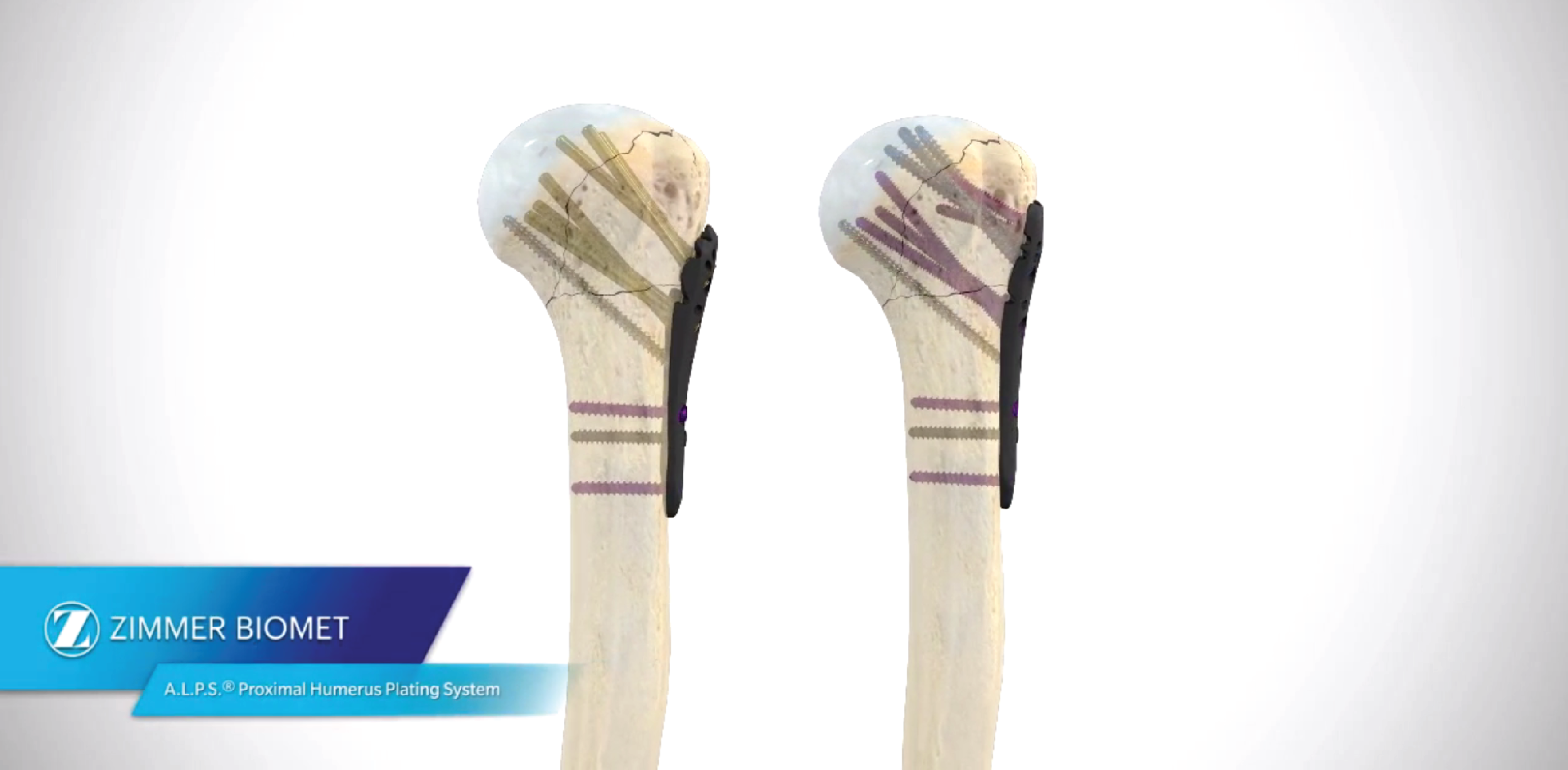 A.L.P.S Proximal Humerus Plating System