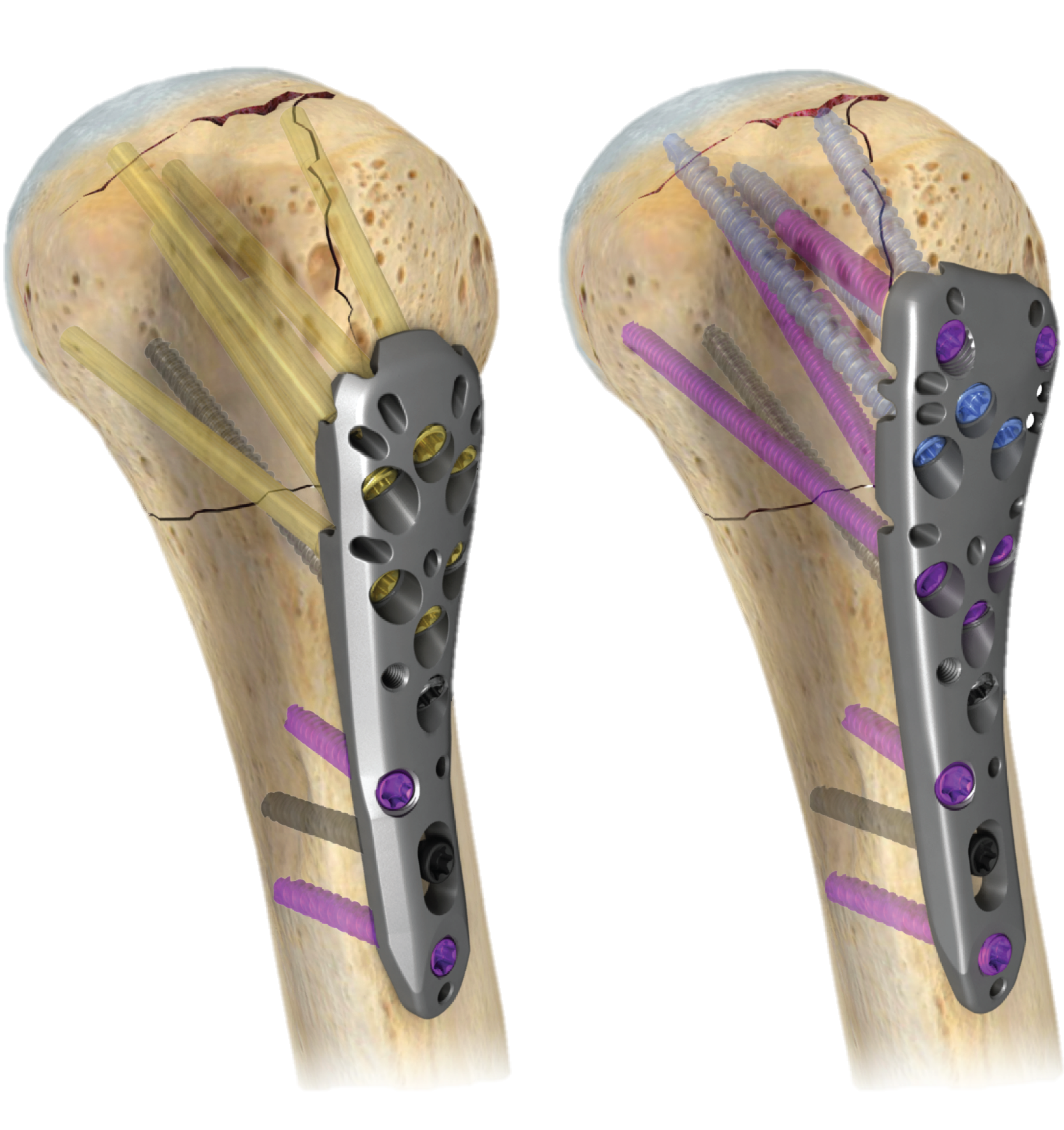 A.L.P.S.® PROXIMAL HUMERUS PLATING SYSTEM